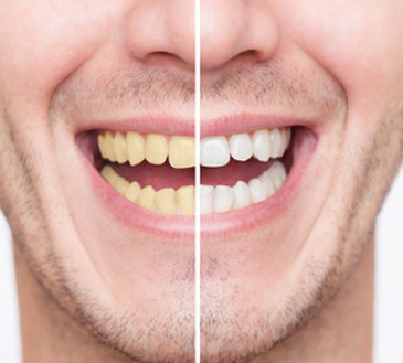 blanchiment des dents en Tunisie