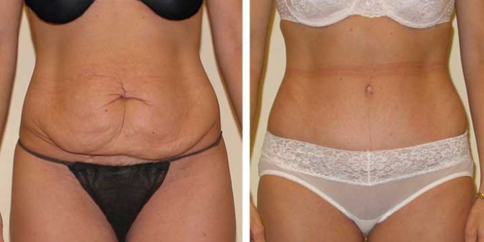 chirurgie reparatrice du ventre