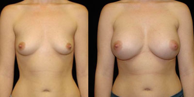 augmentation seins en tunisie