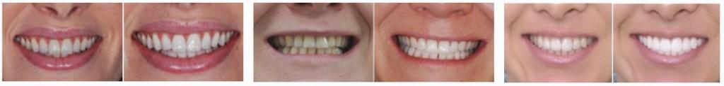 photos blanchiment dentaire en Tunisie