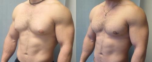 reduction mammaire masculine