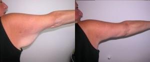 chirurgie des bras en Tunisie