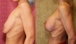 correction ptose mammaire en Tunisie