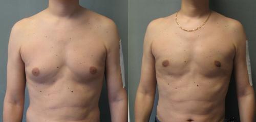 reduction des seins masculins en tunisie