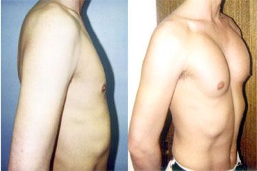 prix implants pectoraux en tunisie
