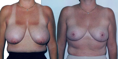 reduction seins en tunisie