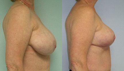 reduction mammaire pas cher