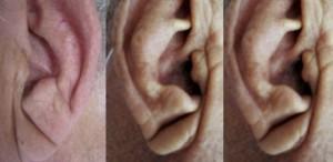 corriger des oreilles décollées