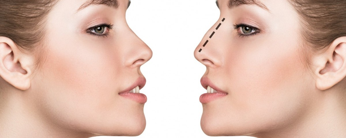 Conseils chirurgie du nez