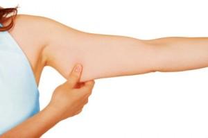 exces-peau-bras