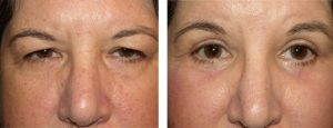 Blepharoplastie laser en Tunisie