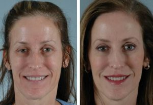 Botox Tunisie