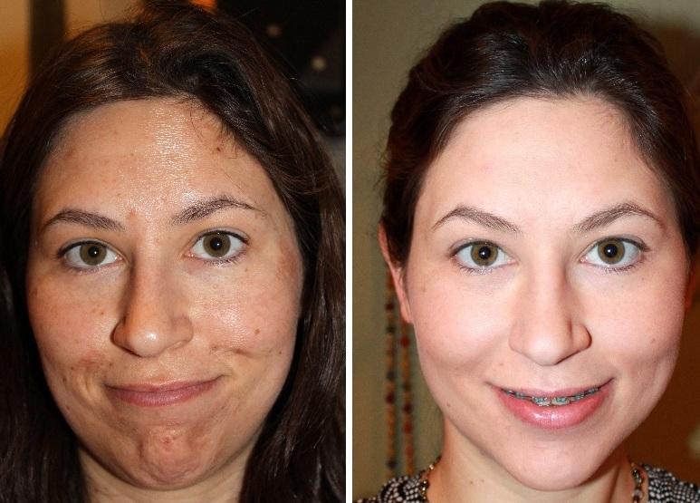 peeling facial prix