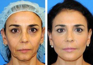 lipofilling visage en Tunisie