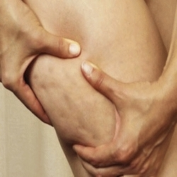 Cellulite homme