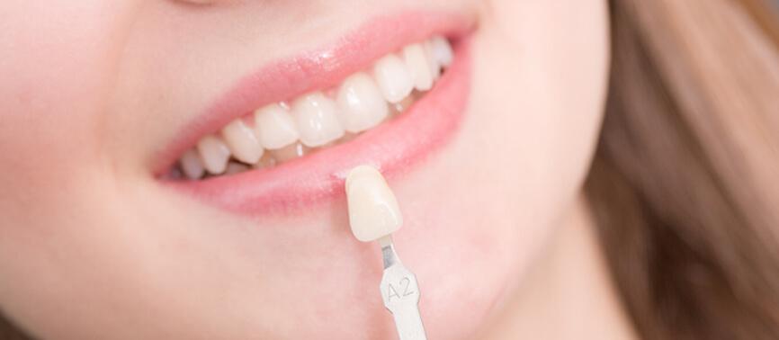 prix facette dentaire
