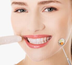 facette-dentaire